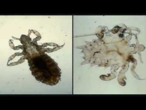 How Long Diatomaceous Earth To Kill Bed Bugs