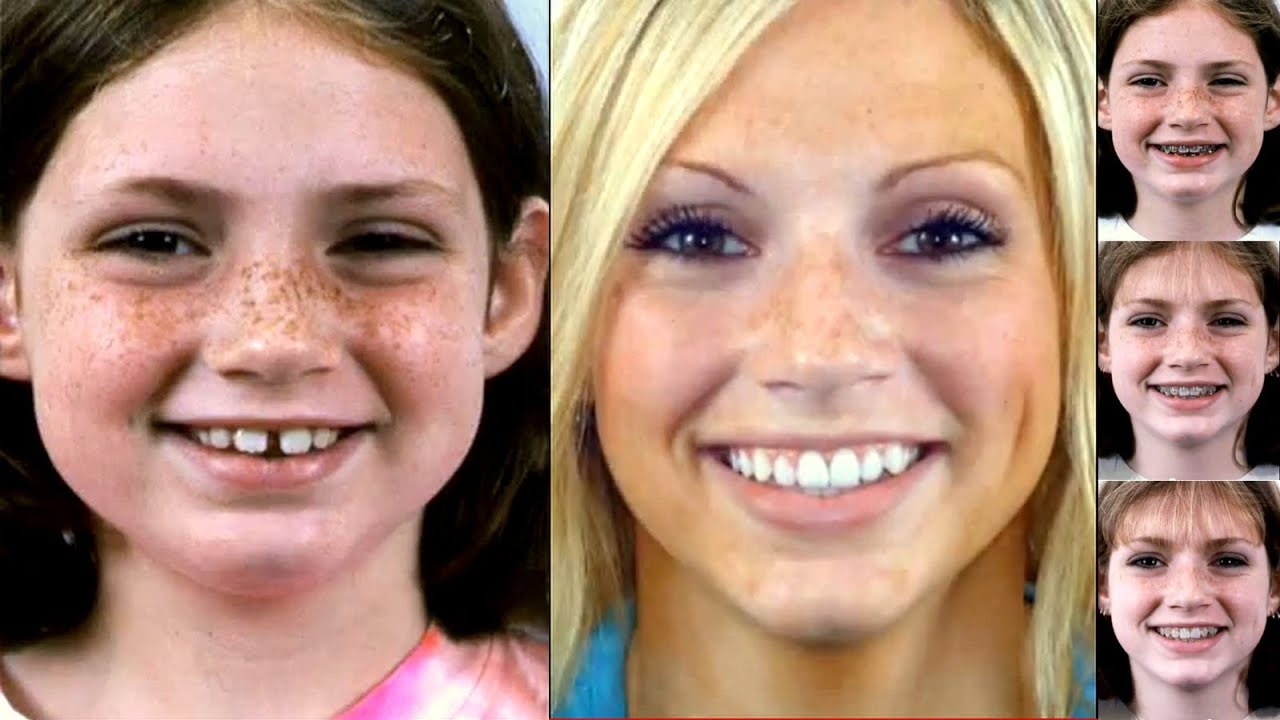 Braces Before After Videos