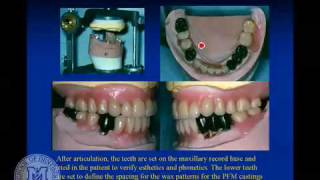 Partial denture attachments