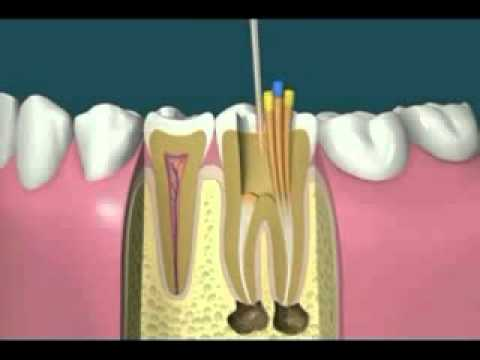 Root Canal Treatment- happy dental care