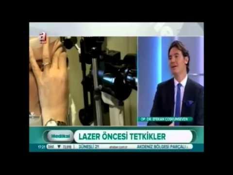 Op. Dr. Efekan Coşkunseven, Lazer Ameliyatları Hakkında Bilgi Verdi - Dünyagöz