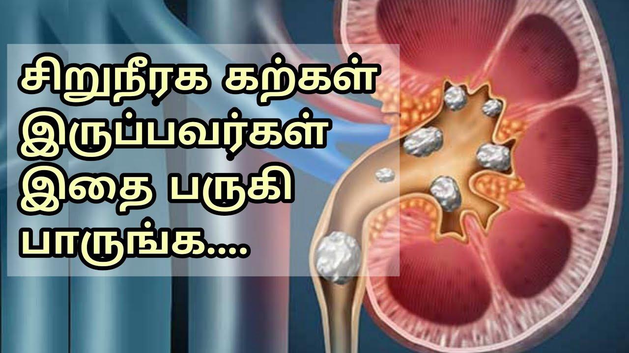 சிறுநீரக கற்கள் கரைய | Kidney stone Treatment at Home in Tamil | Home Remedy Tips
