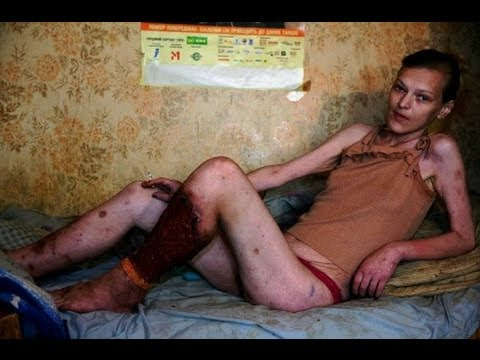 Krokodil, Flesh Eating Drug from HELL From Russia To 1st case in