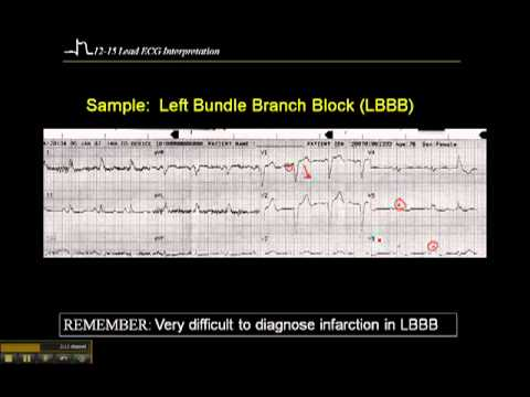 12-15 Lead ECG: Left Bundle Branch Block