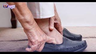 بالفيديو..6 طرق لعلاج الفطريات من الأظافر |