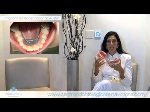 Ortodoncia (Reposicionador de Austro) - Dra. Austro