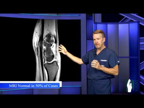Ganglion Cyst Surgery