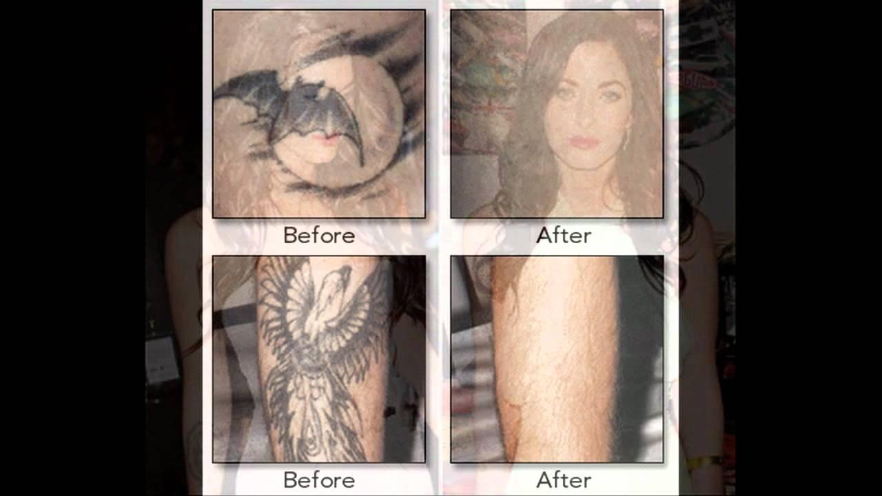 Get Rid Tattoo Reviews   Get Rid Tattoo Naturally PDF - YouTube