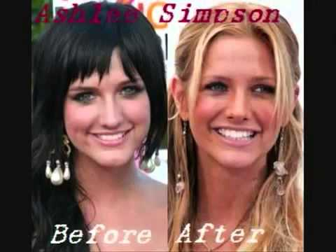 Famous Celebrity Plastic Surgery Gone Wrong Non Surgical