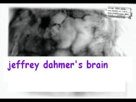 biopsychosocial case study of jeffrey dahmer Home / famous serial killers / jeffrey dahmer / psychiatric testimony of jeffrey dahmer it was a very practical and reasonable attempt to achieve his aim' 'have you ever met a case of i think that he should have been committed to a mental facility so that we could study.