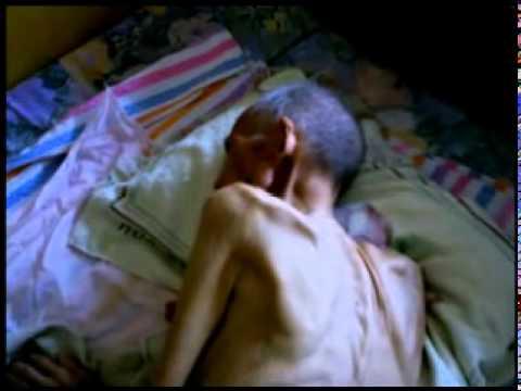 Một cụ 70 tuổi bị tra tấn gần chết ở tỉnh Hà Bắc