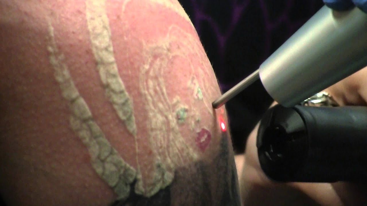 The tattoo removal process youtube for Process of tattooing