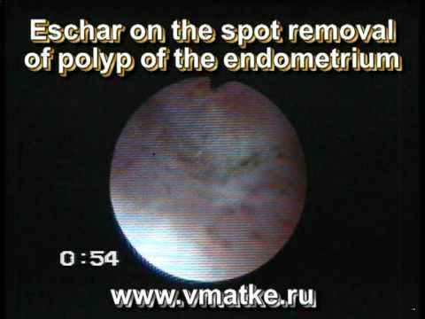 Eschar on the spot removal of polyp of the endometrium. Hysteroscopy