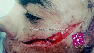 ضحية عصابة مول الطاكسي بفاس يطالب بتدخل الحموشي لإنصافه