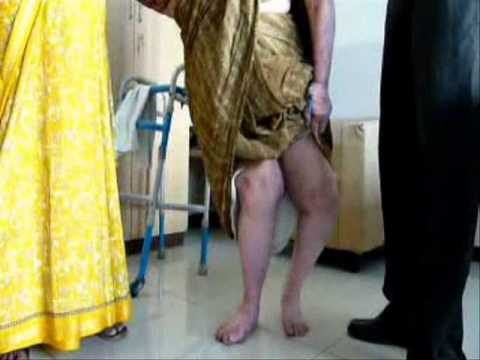 Knee Osteoarthritis with Genu Valgum Deformity