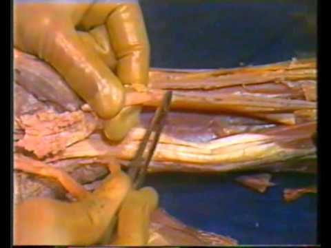 Human Upper Limb Anatomy