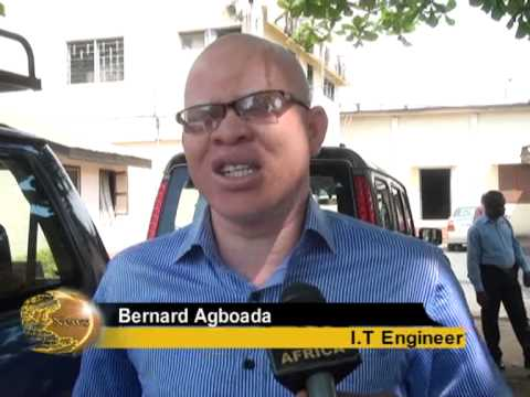 NO COUNTRY FOR GHANA HUNTED ALBINOS