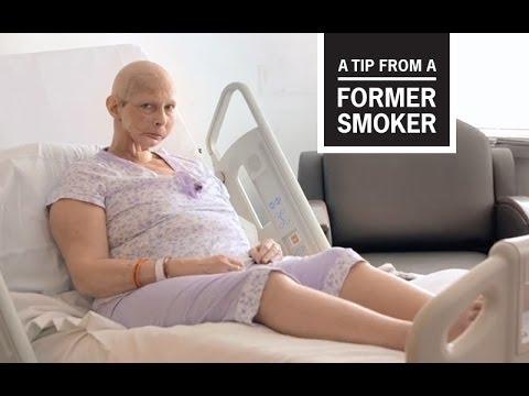 戒菸者現身說法—Terrie的忠告:「別吸菸」CDC Tips From Former Smokers -- Terrie's Ad: Don't Smoke
