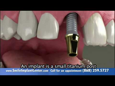 A Single Implant - Why replace missing teeth?