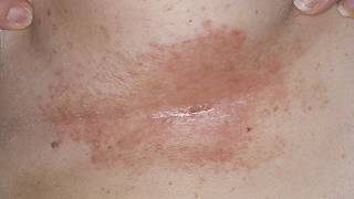 DermTV How To Treat Under Breast Rashes & Infections