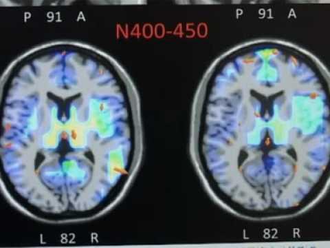 I neuroni specchio le neuroscienze studiano la reazione del cervello agli stimoli youtube - Neuroni a specchio ...