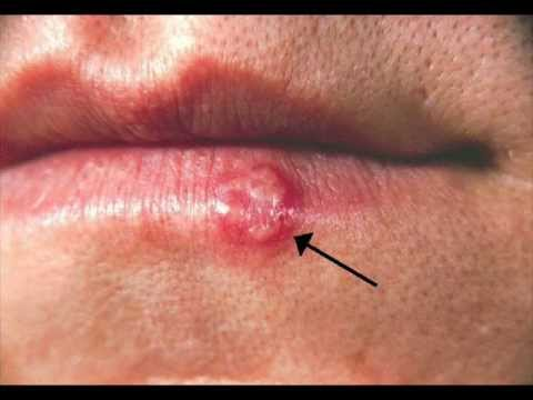 what is herpes symptoms discharge