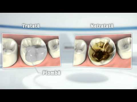 Cum prevenim cariile dentare