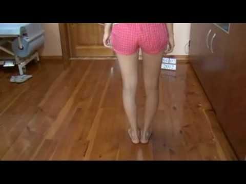 Eğri bacaklar (genu varum) düzeltme tedavisi - Ukrayna