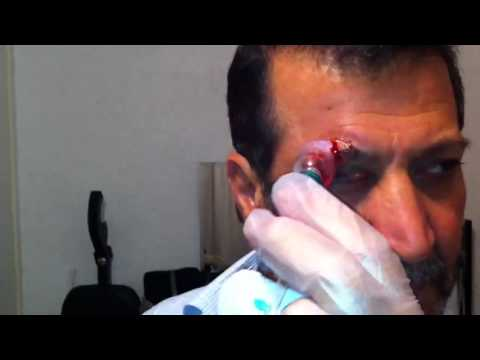 Cupping Lesson 5 Part 1: Cupping For Eyes & Sight Related Problems