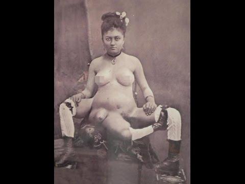 Tìm hiểu về người phụ nữ kỳ lạ có 3 chân và 2 âm đạo riêng biệt