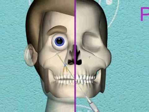 Dentista 3d Anestesia
