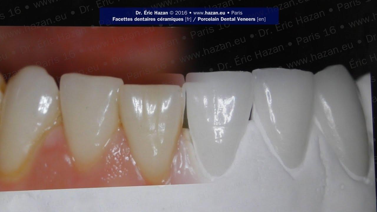 Dr. Éric Hazan : Dentiste Paris 16ème [fr]