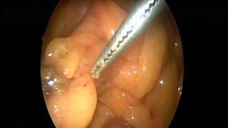 Reseccion De Apendice Epiploico Necrosado Por Laparoscopia