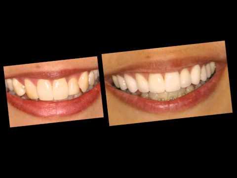 Correction of Crooked Teeth