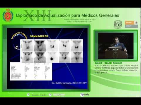 Estudio del Nódulo Tiroideo y Cancer Diferenciado-Acad. Dr. Mauricio Huerta López-13Mar2012