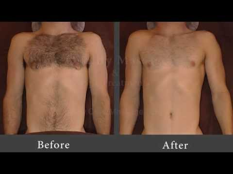 Manscaping Groin Before And After Manscape - chest, stomach