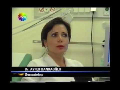 Show TV ANA HABER - Sigara İnsan Cildini Nasıl Etkiler