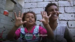 قصة طفل يمني فقد ساقيه في الحرب في عدن | قنوات أخرى