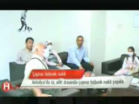 Prof.Dr.ALPER DEMİRBAŞ ÇAPRAZ NAKİL