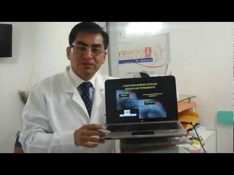 Eliminar maquillaje permanente con tratamiento láser - Dermatologo en Lima Perú