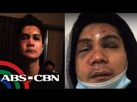Shocking Photos of Vhong Navarro after The Fort attack.