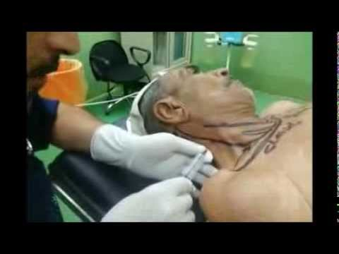 Videos facial nerve starts to branch are