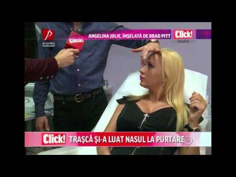 Simona Trasca după operație Click! la Prima TV