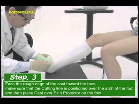 Short Leg Cast Application
