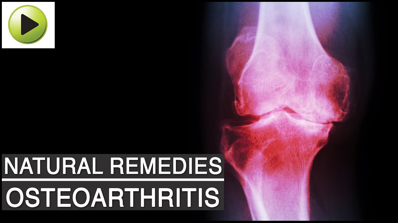 Aches Amp Pains Osteoarthritis Arthritis Or Joint Pain