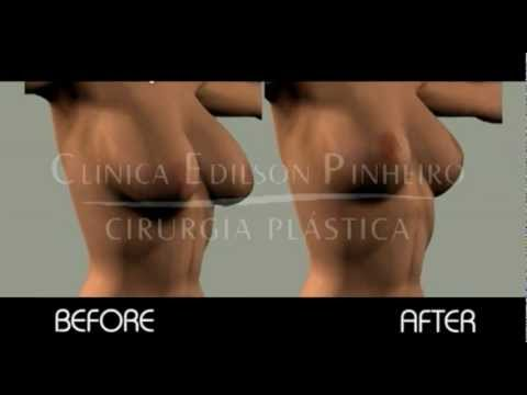 Breast Reduction - Before and After - Plastic Surgery Brazil - YouTube