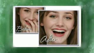 Costa Mesa Teeth Whitening