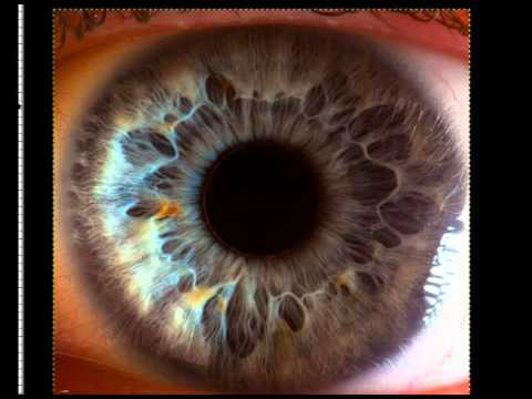 IRIDOLOGY TEACHING EYE #2
