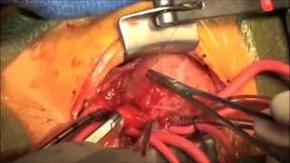 Neonatal cardiac surgery