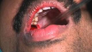 Anal fistula treatment in homeopathy